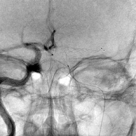 Stent retriever v M1 arteria cerebri media vlevo<br>