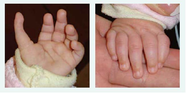 Tříčlánkový palec u kojence s Diamondovou-Blackfanovou anémií. Kromě tříčlánkového palce je patrný i jeho atypický odstup. Anomálie si vyžádala plastickou operaci.