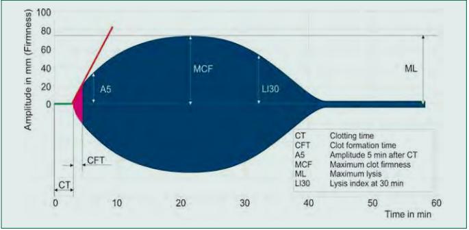 Křivka a parametry vyšetření ROTEM: Přehled základních parametrů získaných při vyšetření ROTEM. Zelená část křivky představuje iniciaci koagulace, fialová její kinetiku a modrá část výslednou pevnost koagula společně s fibrinolytickými procesy. Vysvětlivky v textu. Zdroj: https://www.rotem. de/wp-content/uploads/2016/02/TEMogramme-EN-A5-768x384.jpg.