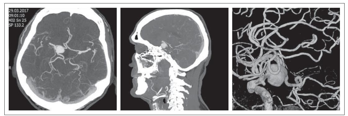 Obr. 1. MR mozku. Prolaktinom se supraselární propagací – červenec 2015.<br> Fig. 1. Brain MRI. Prolactinoma with supraselar growth – July 2015.
