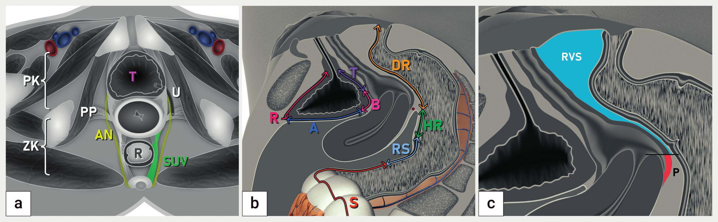 Lokalizace hluboké endometriózy podle doporučení IDEA<br> Schéma koronárního řezu pánví (a), sagitálního řezu se zobrazením anatomických struktur močového měchýře a rekta (b) a sagitálního řezu pánví se zobrazením zadní stěny pochvy a rektovaginálního septa A – abdominální úsek močového měchýře (vertex), B – baze močového měchýře, DR – dolní rektum, HR – horní rektum, P – pochva, PK – přední kompartment, PP – postranní parametria, R – retroperitoneální část močového měchýře, RS – rektosigmoideum, RVS – rektovaginální septum, S – sigmoideum, SUV – sakrouterinní vazy, T – trigonum močového měchýře, U – ureter; ZK – zadní kompartment