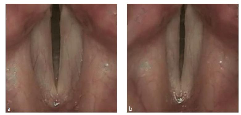 Rigidní lupenlaryngostroboskopie. Oboustranná kompletní paréza hlasivek. V respiračním (4a) i ve fonačním (4b) postavení obě uloženy paramediálně. Zdroj: Klinika otorinolaryngologie a chirurgie hlavy a krku FNHK