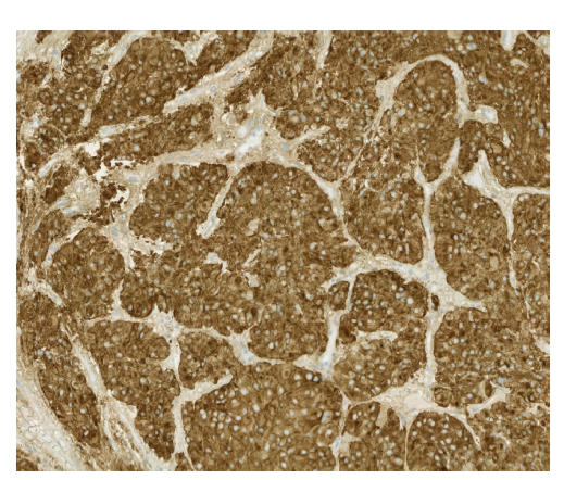 Fig. 5d: Histopathology: paraganglion, immunohistochemical staining; synaptophysin: strong diffuse positivity