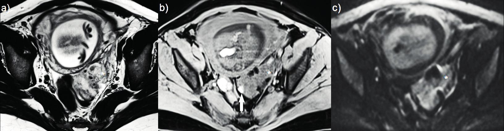 Zobrazení magnetickou rezonancí<br> (a–c) nodulus hluboké infiltrující endometriózy postihující sigmoideum, diagnostikovaný v graviditě se známkami decidualizace; (a) T2 vážený obraz – ložisko sníženého signálu s hyposignálními okrsky (hvězdička); (b) T1 vážený obraz s potlačením tuku – ložisko izosignální s endometriem v dutině děložní (hvězdička), hypersignální okrsek odpovídá přítomnosti rozpadových produktů hemoglobinu (šipka); (c) difuzně vážená sekvence – absence restrikce difuze uvnitř léze (hvězdička).