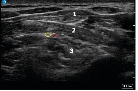 Ultrazvukový obraz velkého okcipitálního nervu a průvodné cévy ve fasciálním prostoru mezi epaxiálními svaly