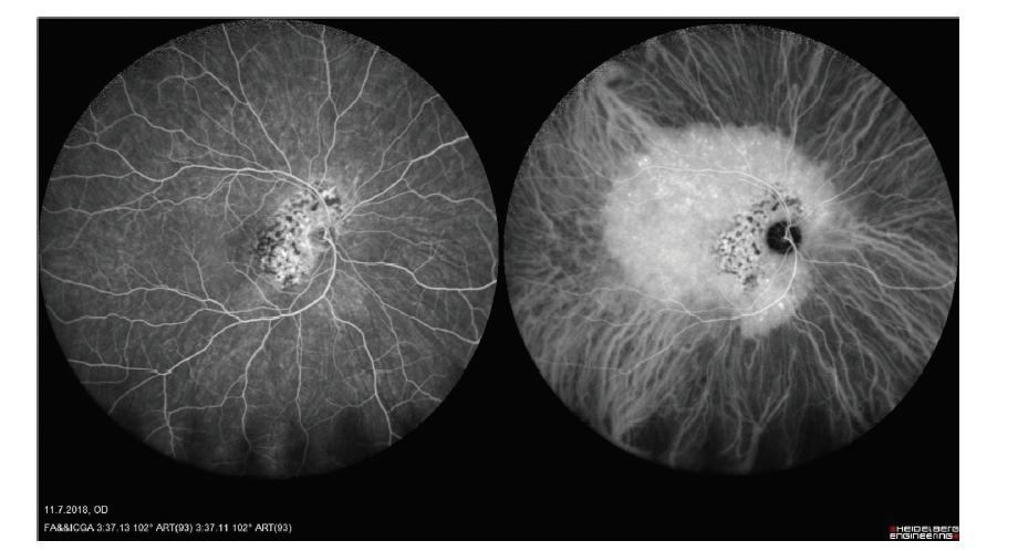 Širokoúhlý snímek fluorescenční angiografie a angiografie s indocyaninovou zelení hemangiomu cévnatky