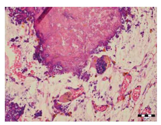 Mnohojadrové bunky charakteru osteoklastov v okolí prasknutého Meckelovho divertikula (hematoxylín-eozín, zväčšenie 400x).