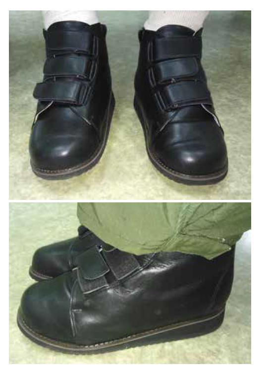 Obr. 10 a 11 Speciální obuv zhotovená na míru pacienta (foto archiv autorky)