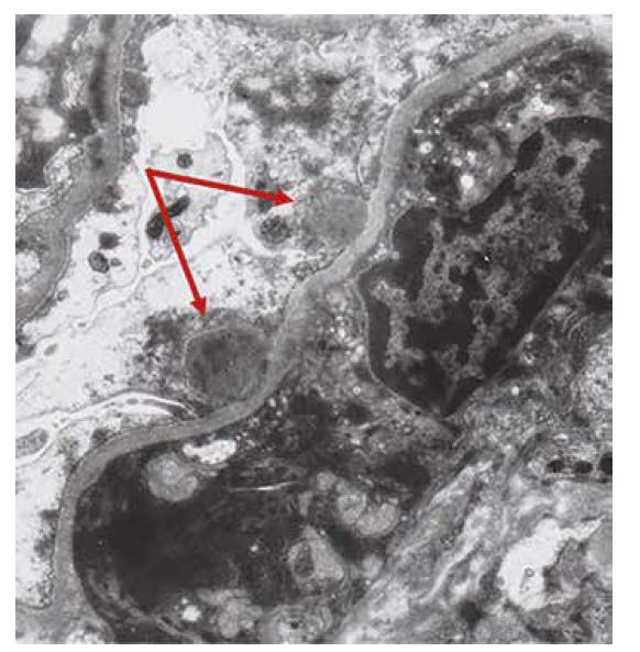 Ultrastruktura s úseky kapilárních kliček s několika depozity subepiteliálně (šipky). V okolí je fúze pedicel podocytů.