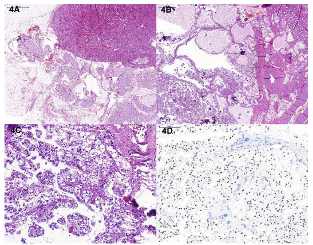 Histologický nález; A – přehledové zvětšení, B – detail cystického uspořádání tumoru, fokálně se solidnější mi okrsky, přítomny jsou výrazné kalcifikace, C – papilární struktury, lemovány buňkami se světlou cytoplazmou, D – imunohistochemický průkaz TFE3<br> Fig. 4. Histological finding; A – overview, B – detail, cystic appearance of the tumor, focally with initially solid areas and calcifications, C – typical papillary structures, lined by cells with clear cytoplasm, D – TFE3 immunohistochemistry (nuclear positivity)