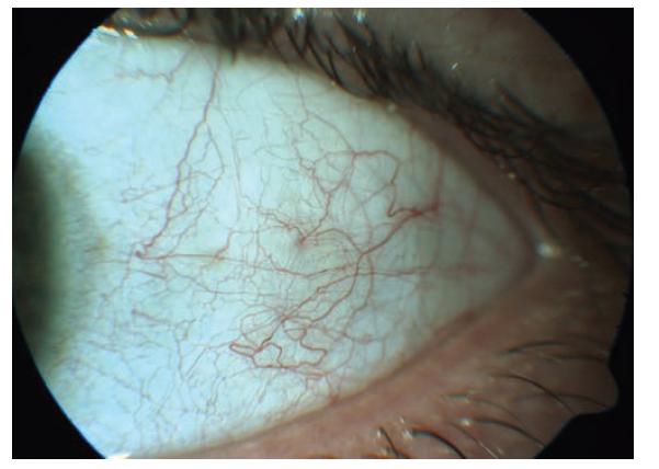 HIV mikrovaskulopatie na předním segmentu oka – tortuozita cév, přerušovaný krevní sloupec, mikroaneurysmata