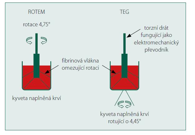 Princip funkce ROTEM a TEG