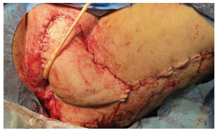 "Laloková plastika – ""posterior thigh flap"" po výkonu.<br> Fig. 1. Vulvar reconstruction with ""posterior thigh flap""."