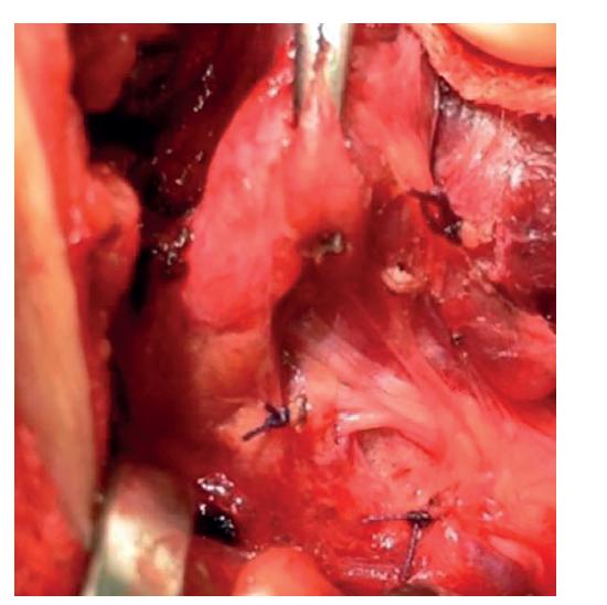 Vrchol TZ mířící na horní příštítné tělísko − typický (tunelový) průběh NLR<br> Fig. 3: The top of the TZ pointing at the upper parathyroid gland – a typical (tunnel-like) course of the NLR