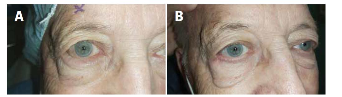 (A) Entropium pravého oka – stav před operací, (B) stav po operaci