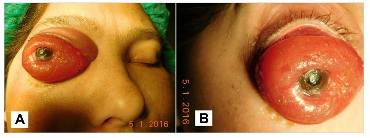 Macrophoto 1/2016 before surgery (A), detail of the eye globe (B)