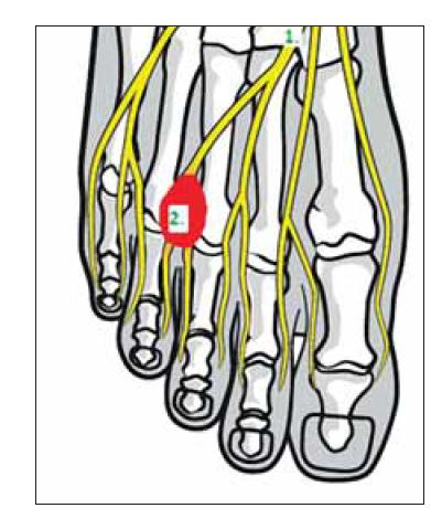 Anatomie planty – (1) n. digitalis plantaris communis; (2) červeně Mortonův neurom.<br> Fig. 1. Plantar foot anatomy – (1) common plantar digital nerve; (2) Morton's neuroma (red).