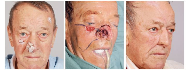 Případ 3 – rozsáhlý basaliom pravé poloviny nosu: A) stav před operací, B) stav po radikální resekci tumoru, C) stav po dokončení rekonstrukce nosu.