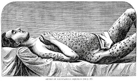 Obrázek varující před injekčním zneužíváním morfinu – následky podkožních injekcí. Zdroj: Wikimedia Commons (CC BY 4.0)