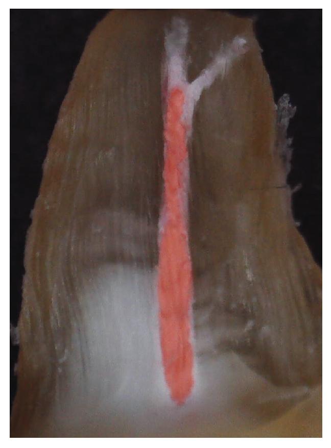 Makroskopická fotografie znázorňuje podélný řez kořenovým kanálkem zaplněným biokeramickým sealerem (in vitro) – nástřik apikálních ramifikací sealerem <br> Fig. 2 Macroscopic photography show longitudinal section of extracted tooth obturated with abioceramic sealer, where part of the space and irregularities of the root system are filled by the sealer – apical ramifications of root canal filled with sealer