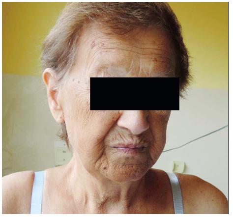 Vzhled pacientky s Addisonovou nemocí. Fotografie pacientky v závěru hospitalizace. Zdroj: archiv autora