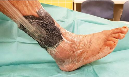 Použití podtlakové terapie k dočištění plochy před transplantací