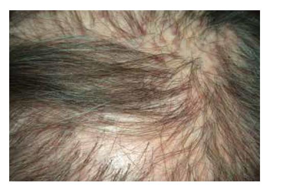 Lichen planopilaris kštice: jizvící alopecie, folikulárně vázané červenofialové makulopapuly