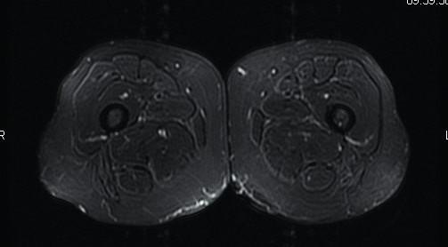Axiální STIR (short tau inversion recovery) sekvence – zdravý sval. Zdroj: Archiv Revmatologického ústavu (ÚVN Střešovice, Discovery 450; 1,5 T)