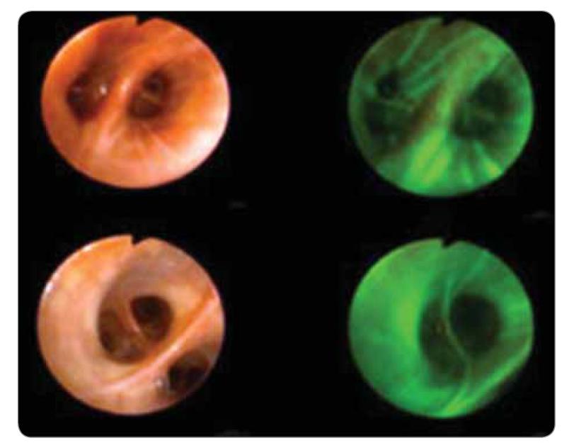 Autofluorescenční bronchoskopie.