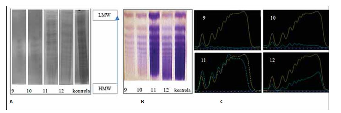 Analýza multimérov vWF vzoriek č. 9–12 a kontroly. (A) klasická – manuálna metóda, (B) poloautomatickým prístrojom Hydrasys, (C) denzitometrické vyhodnotenie.
