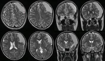 Signs of older intracystic hemorrhage into the patient`s arachnoid cyst on a routine MRI at age 15.<br> Obr. 2. Známky staršího krvácení do arachnoideální cysty zobrazeném na rutinní MR v 15 letech.