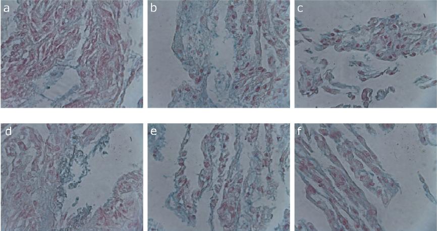 Barvení kyselých mukopolysacharidů v extracelulární matrix KBZD alciánovou modří; KBZD linie 1: kontrola (a), médium 1 (b), médium 3 (c), KBZD linie 2: kontrola (d), médium 1 (e), médium 3 (f)<br> Fig. 2<br> Alzian blue staining of acid mucopolysaccharides in the extracellular matrix of DPSCs; DPSC line 1: control (a), medium 1 (b), medium 3 (c), DPSC line 2: control (d), medium 1 (e), medium 3 (f)