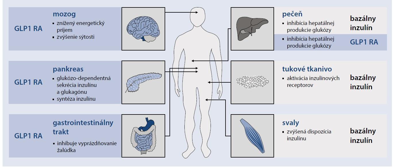 Schéma. Patofyziologický mechanizmus pôsobenia kombinácie GLP1 RA a inzulínu [12,15,16]