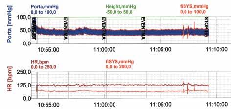Príklad záznamu u nedonoseného dieťaťa. Pre vyhodnocovanie bol vybratý kontinuálny stacionárny úsek záznamu obsahujúci 250 systol z registrácie v čase medzi 11:00–11:08 hod. V hornej časti obrázka je záznam tlaku krvi, v dolnej časti horná krivka zodpovedá okamžitej frekvencii srdca, dolná krivka zobrazuje zmeny systolického tlaku krvi (škála 0–200 mmHg). I na tomto zázname možno vidieť, najmä v prvej časti, zrkadlový obraz zmien frekvencie srdca a systolického tlaku krvi v dôsledku funkcie baroreflexov.<br> Fig. 3. Example of a record in a premature infant. A continuous stationary section of the record containing 250 systoles from the registration between 11:00–11:08 hrs was selected for evaluation. In the upper part of the record there is a curve of blood pressure, in the lower part the upper curve corresponds to the instantaneous heart rate, the lower curve shows the systolic blood pressure (scale 0–200 mmHg). Even in this record, it can be seen, especially in the first part, a mirror image of changes in heart rate and systolic blood pressure due to the baroreflexes.