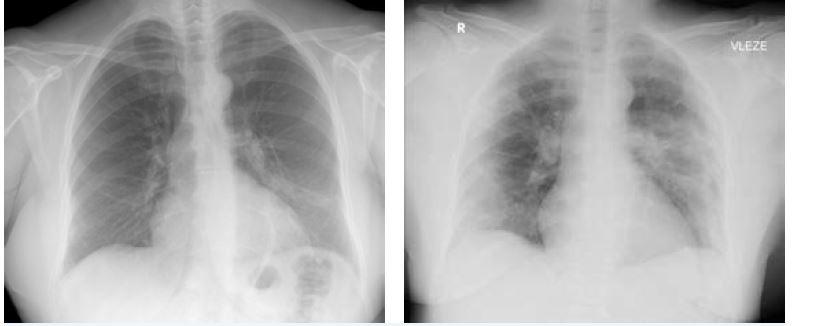 Obr. 3 a 4 Snímek hrudníku u 53leté pacientky sCOVID-19 (6. a 12. den trvání obtíží): progresivní zhoršení nálezu, četné infiltrativní změny periferně oboustranně nakontrolním snímku