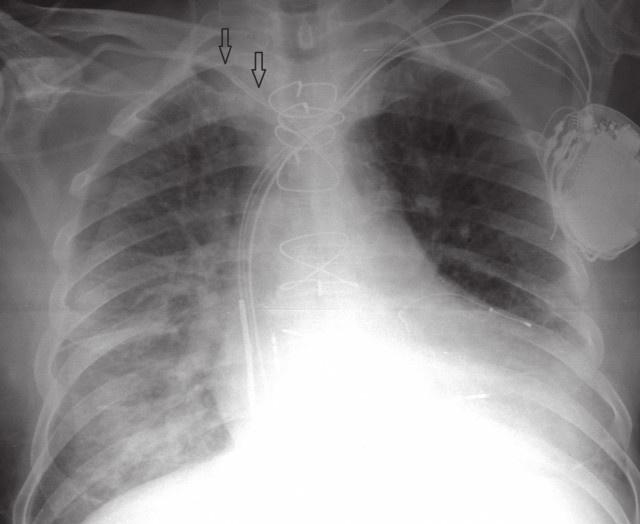 Obr. 1 RTG plic<br> RTG se zavedeným CŽK do a. subclavia dx., průběh typicky nerespektuje žilní anatomii (šipky). CŽK – centrální žilní katétr