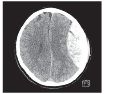 Fig. 2. Brain CT, axial scan. Adult patient with epidural hematoma – surgical therapy (large epidural hematoma).<br> Obr. 2. CT mozku, axiální řez. Dospělý pacient s epidurálním hematomem – chirurgické řešení (objemný epidurální hematom).