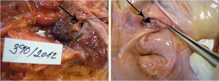 Atrio-ezofageální píštěl.<br> Fig. 2. Atrio-oesophageal fistula.
