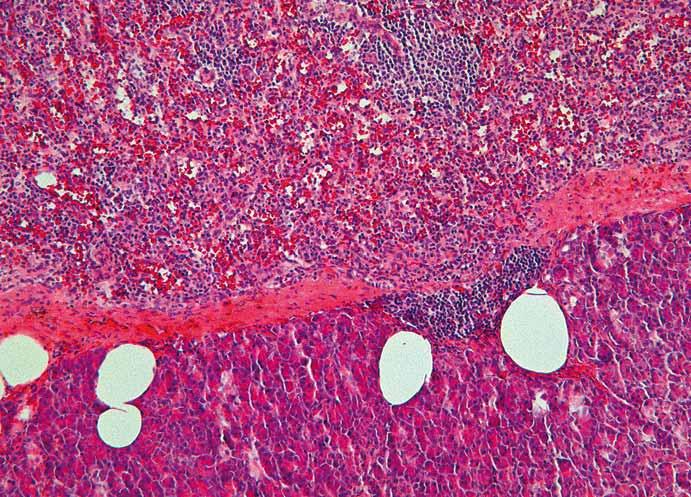 Histologický nález – intrapankreatická akcesorní slezina (IPAS) oddělená od pankreatické tkáně vazivovým pouzdrem (barvení hematoxylin-eozinem, zvětšení 100×). Fig. 2. Histopathological image – intrapancreatic accessory spleen (IPAS) separated by a fibrous capsule from the pancreatic tissue (Haematoxylin and eosin staining, magnifi cation 100×).