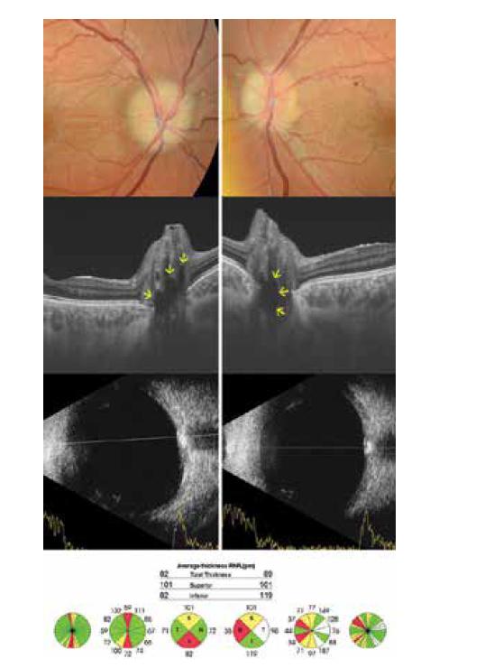 14letý, nejstarší pacient v našem souboru. Fundoskopicky nález bilaterálního pseudoedému, terč má jemný palor. Na lineárních horizontálních transpapilárních swept source OCT skenech jsou viditelná mnohočetná hyporeflektivní ložiska odpovídající drúzám. Na ultrazvuku jsou typické hyperechogenity papil zrakových nervů. Průměrná tloušťka peripapilární vrstvy nervových vláken je snížená