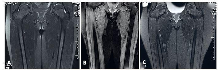 MRI svalov dolného pletenca a stehna.<br> A) fyziologický nález u pacientky s amyopatickou formou JDM, B) patologický nález u pacientky s floridnou JDM, C) regresia patologických zmien u rovnakej pacientky po liečbe.<br> Fig. 3. MRI of lower girdle and thigh muscles.<br> A) physiological findings in amyopathic JDM, B) pahtological findings in active JDM (edema of muscle and subcutis), C) reversal of pathological findings in the same patient after treatment.