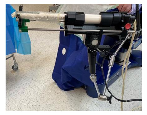 Rameno stepperu s fixovanou transrektální ultrazvukovou sondou (archiv autora)<br> Fig. 3. Stepper arm with an attached transrectal ultrasound probe (author's archive)