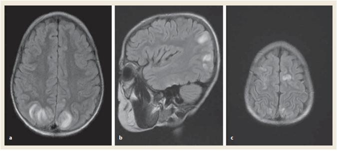 Magnetická rezonance mozku v době diagnózy PRES. FLAIR sekvence axiálně a sagitálně: hyperintenzní léze kortikálních a subkortikálních oblastí parietookcipitálně (a, b).  Hyperintenzní léze oboustranně kortikálně frontálně (c). Zdroj: Radiologická klinika LF UP a FN Olomouc.<br> Fig. 1. Brain magnetic resonance imaging at the time of diagnosis of PRES. Axial and sagital FLAIR images: high-signal intensity lesions in the cortical and subcortical areas in occipital and parietal lobes (a, b)  and in billateral frontal lobes (c). Source: Radiological clinic LF UP and FN Olomouc.