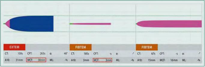 Deficit fibrinogenu a trombocytů: Vlevo patologická křivka vyšetření EXTEM se snížením parametru MCFEXTEM (červený rámeček, normální hodnoty 50–72 mm), které může značit deficit fibrinogenu či trombocytů. K odlišení je proveden test FIBTEM – snížení parametru MCFFIBTEM (červený rámeček, normální hodnoty 9–25 mm) představuje deficit funkčního fibrinogenu, normální hodnota tohoto parametru pak deficit funkčních trombocytů.