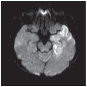 Herpetická encefalitida. Vyšetření MR, difuzí vážené zobrazení – restrikce difuze vlevo temporálně v rámci akutních projevů herpetické encefalitidy<br> Fig. 8. Herpes viral encephalitis. MRI scan, diff usion weighted imaging – diff usion restricted acute lesions in herpes viral encephalitis involving the left temporal lobe.