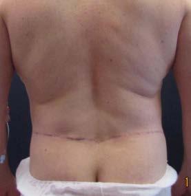 Lower body lifting – pooperační foto zezadu