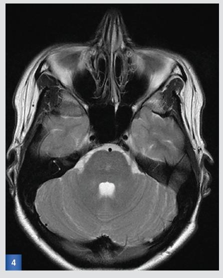 Kontrolní MRI po 3 měsících:T2-vážený obraz