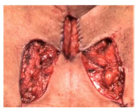 Perineální uretrostomie dle Blandyho<br> Fig. 2. Perineal urethrostomy according to Blandy