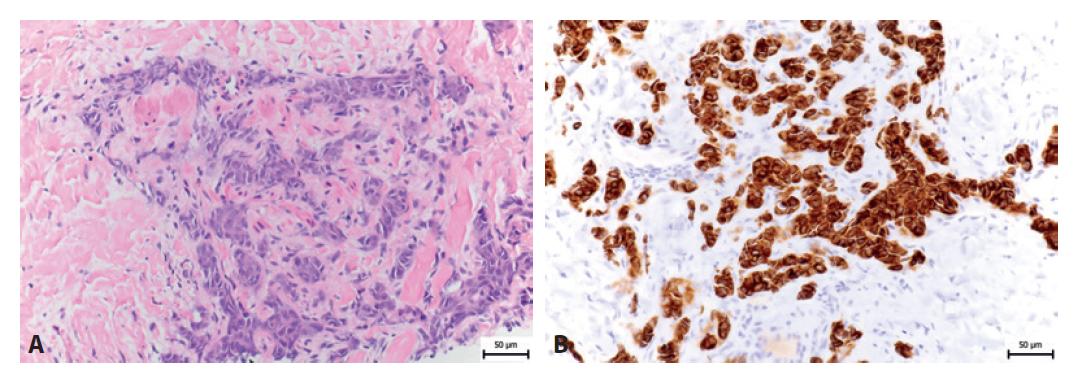 A: HE 26letého pacienta s Ewingovým sarkomem. B: Imunohistochemický průkaz cytokeratinu-KL1.