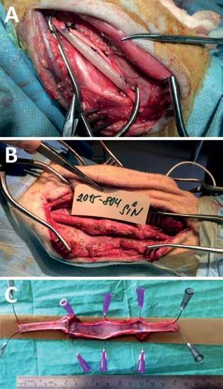 Fotografie cévní náhrady Cévní náhrada po implantaci (A), s 6 měsíčním odstupem při reoperaci (B) a explantovaná průchodná náhrada s patrným omezením průtoku za distální anastomózou (C)<br> Fig.1: Perioperative photo of implanted graft Perioperative photo of implanted graft (A), 6 months later (B) and explanted graft with no thrombi (C).